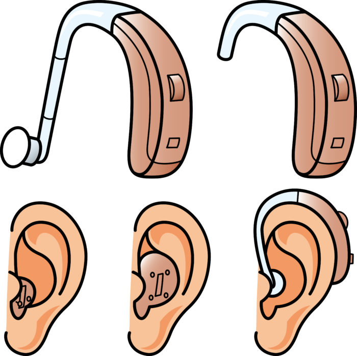 補聴器の形