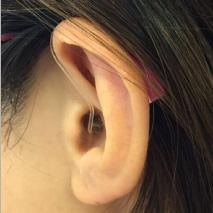 小型耳かけ型補聴器を入れた様子
