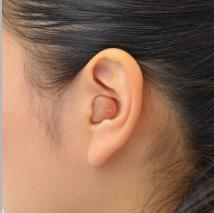 超小型耳あな型補聴器を入れた様子。見えません