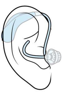 RIC型補聴器を耳に入れたときのイメージ図