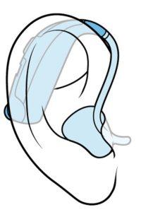 BTE型補聴器を耳に入れたときのイメージ図