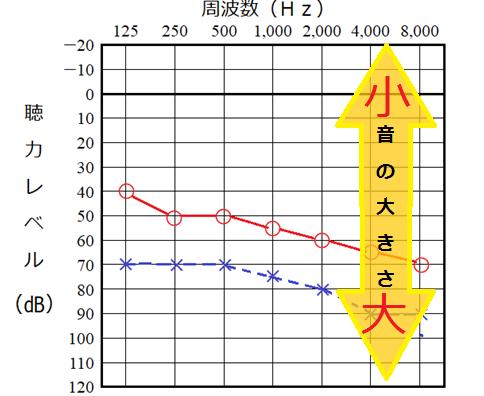 聴力検査結果の読み方、縦軸は音の大きさ