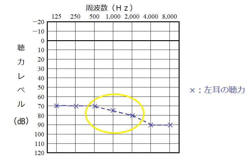 聴力レベルの計算の例、左耳の場合