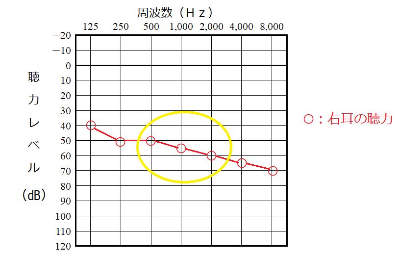 聴力レベルの計算の例、右耳の場合