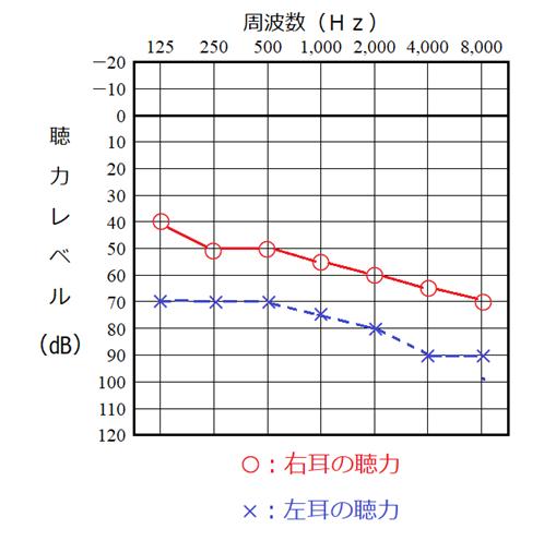 聴力検査の結果、オージオグラムの一例