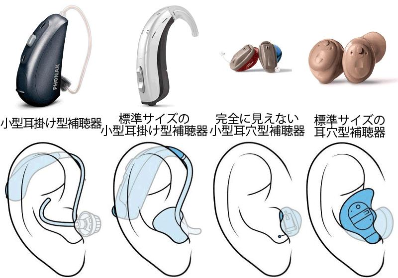 補聴器の形状、4種類の比較図