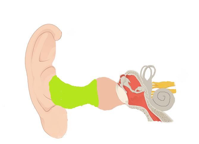 インプ変形外耳道
