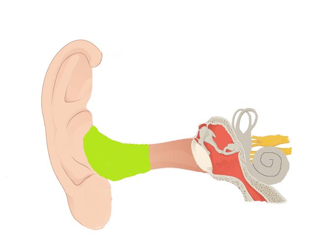 インプノーマル外耳道