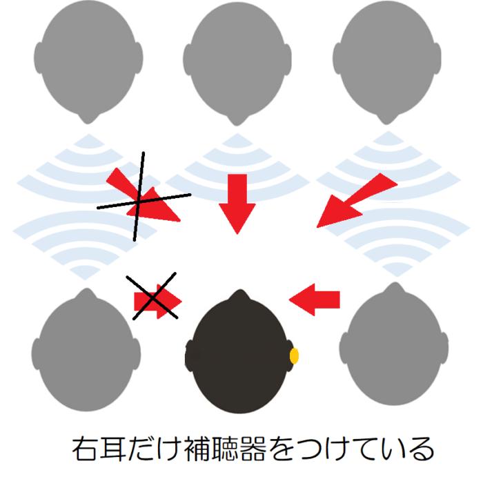 右耳だけ補聴器をつけて、複数の人と会話をしている。右耳だけ補聴器をつけている場合、右方向からの声は聞き取れる。左方向からの声は聞き取りにくい。
