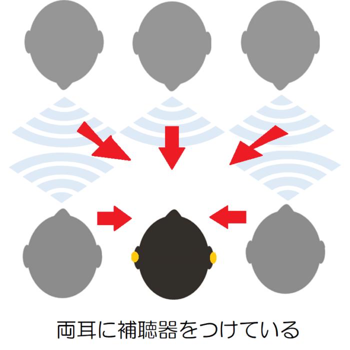 両耳に補聴器をつけて、複数の人と会話をしている様子。両耳に補聴器をつけている場合、前、右、左方向からの声も聞き取りやすい。