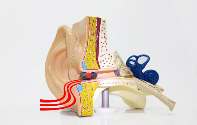 耳の模型。耳の穴とゴム耳せんの間の隙間から音が漏れる。