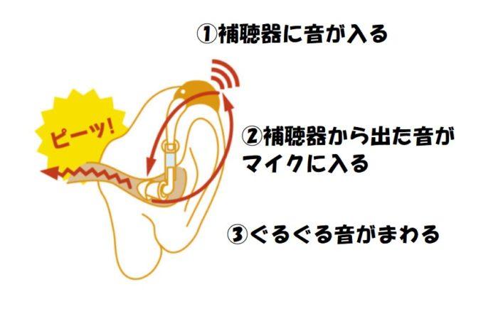 補聴器を使っている最中に、ピーピーと音が漏れている場合(ハウリング)は、イヤモールドで音漏れが防げる