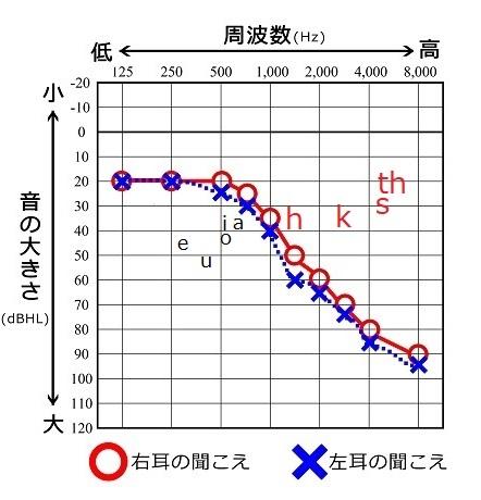 母音、子音成分を追記したオージオグラム
