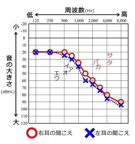 日本語の子音を追記したオージオグラム