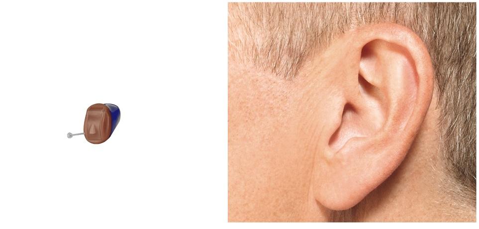 スターキーの一番小さい耳あな型補聴器(IICサイズ)と装用した様子