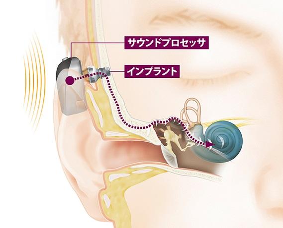 骨固定型補聴器