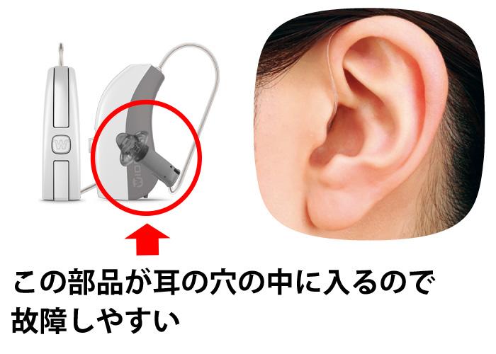 RIC型補聴器はレシーバ部品が耳の中に入る
